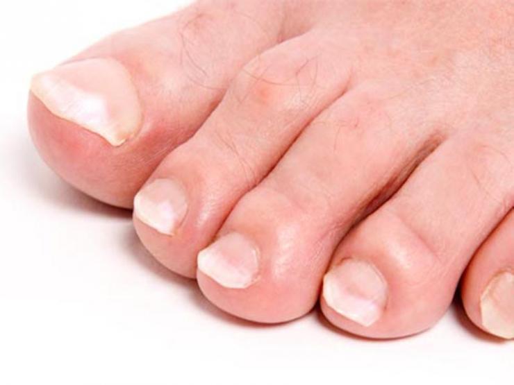 Что означают белые пятна на ногтях ног?