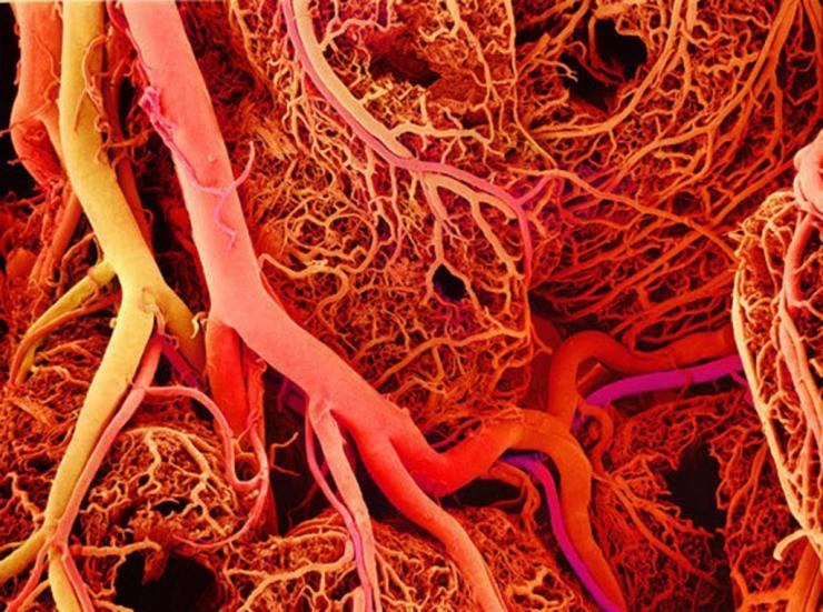инфаркт коленного сустава как лечить