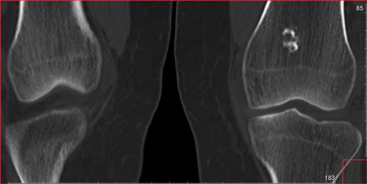Признаки и способы лечения энхондромы бедренной кости
