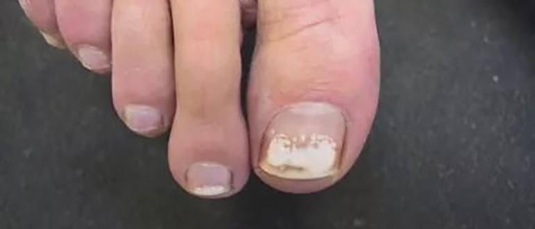 Белое пятно на ногте большого пальца ноги