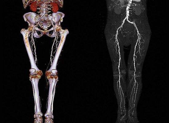 Подготовка и техника проведения ангиографии сосудов ног