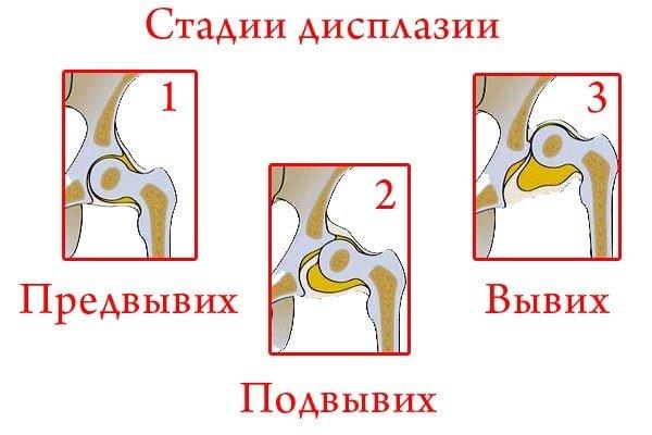 Причины и принципы терапии дисплазии коленных суставов