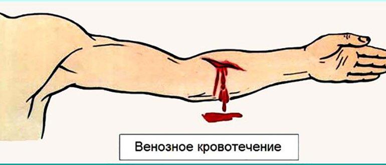 Симптомы венозного кровотечения