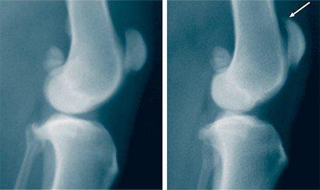 Причины и лечение остеохондромы коленного сустава