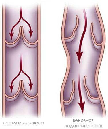 Способы укрепления сосудов ног