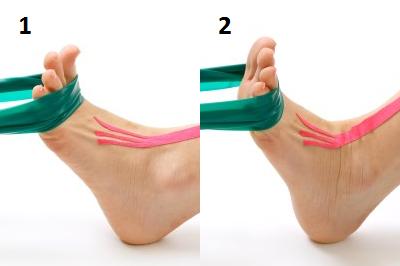 ЛФК при остеоартрозе суставов ног