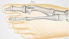 Лечение косточки на большом пальце ноги народными средствами