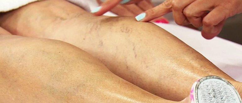Опасные последствия варикоза на ногах у женщин и мужчин