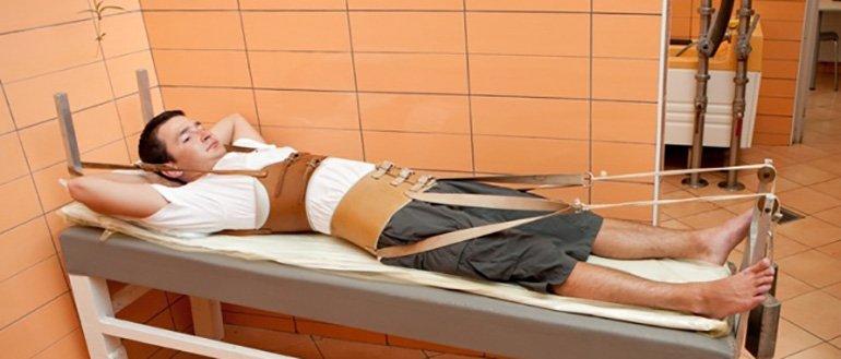 Скелетное вытяжение при переломе голени как способ лечения