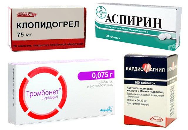 Обзор лекарств, применяемых при тромбофлебите ног