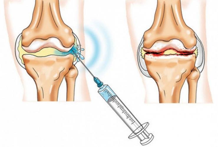 Изображение - Жидкость для снятия боли в суставах 13i5979ae996da501.47756200-740x499