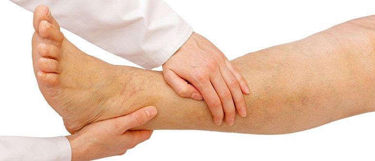 Чем заменить амлодипин при отеках ног