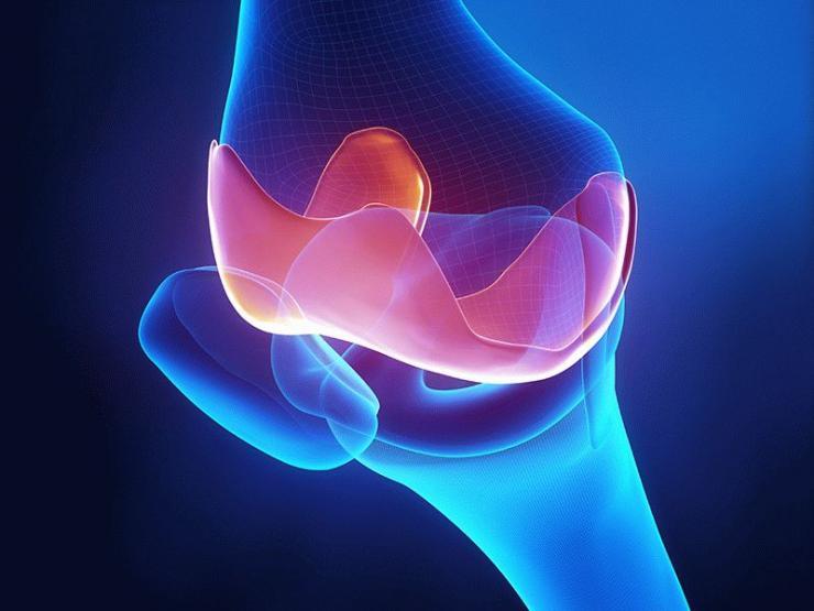 Виды, стадии и терапия генерализованного остеоартроза