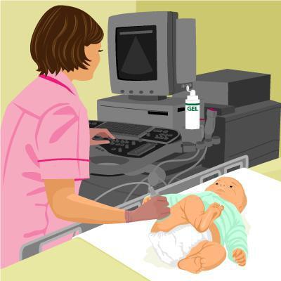 Физиологическая незрелость тазобедренных суставов у новорожденных