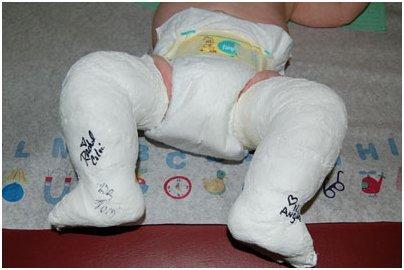Методы исправления врожденной косолапости у детей