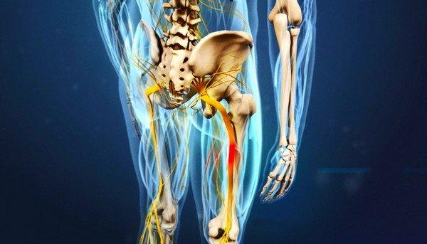 Что делать, если застужен седалищный нерв?