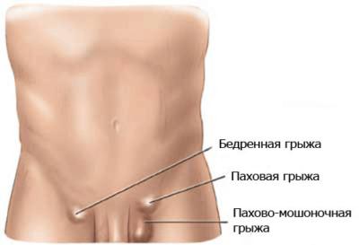 Отличительные признаки и лечение бедренной грыжи