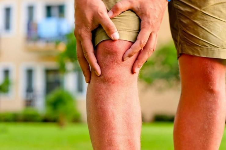 Народные рецепты из лопуха при артрозе коленного сустава