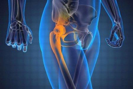 Как лечить растяжение и разрыв связок бедра?