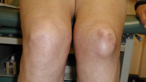 Особенности анзеринового бурсита коленного сустава