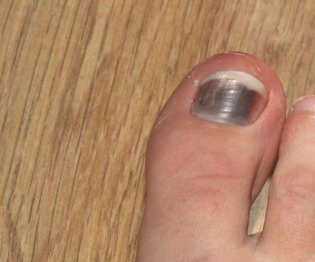 Как лечить синяки под ногтями больших пальцев ног?