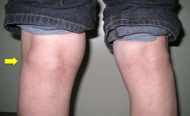 Специфика и виды операций по удалению кисты Бейкера коленного сустава