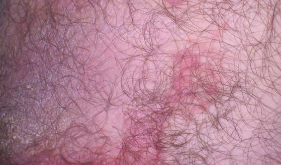 Чем лечить красные пятна на бедрах в паховой области?