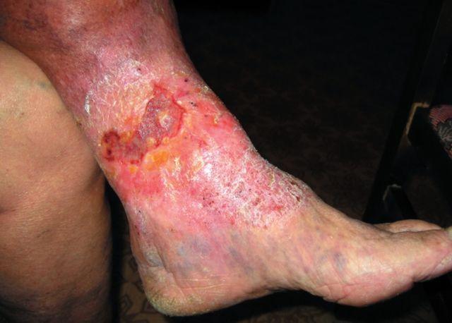 Терапия варикозной экземы на ногах