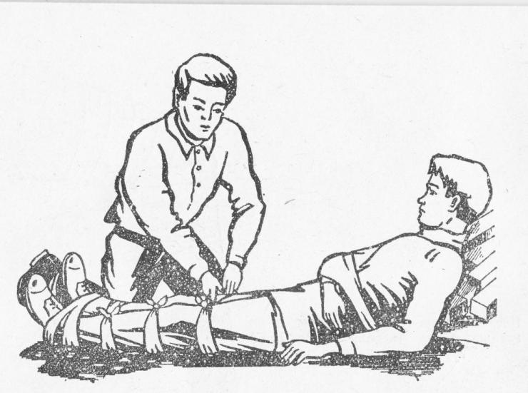 Мероприятия первой медицинской помощи при переломе голени