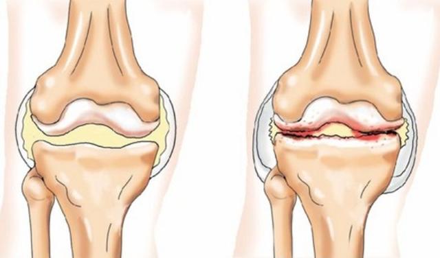 Проявления, факторы риска и терапия остеосклероза суставов