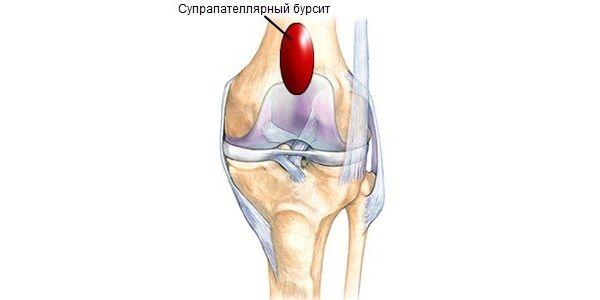 Код по МКБ-10 различных видов бурсита коленного сустава