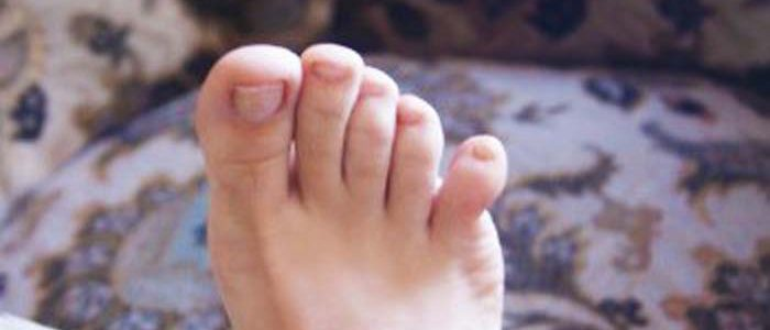 Что делать если вывихнул палец на ноге