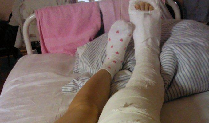 Лечение перелома диафиза бедренной кости