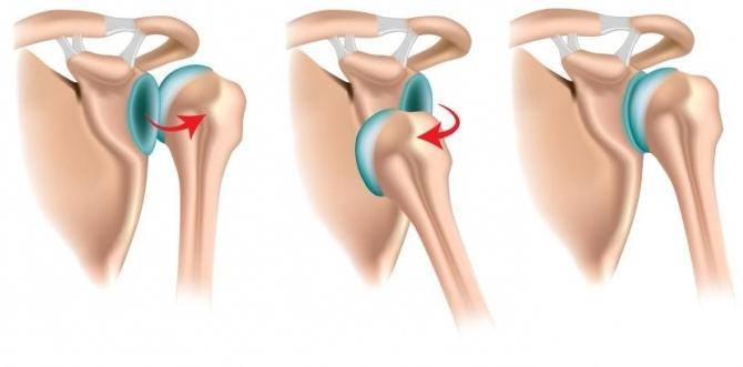 Изображение - Выпадение коленного сустава лечение vyskakivaet-sustav-06
