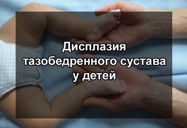 Признаки врожденного вывиха бедра у детей