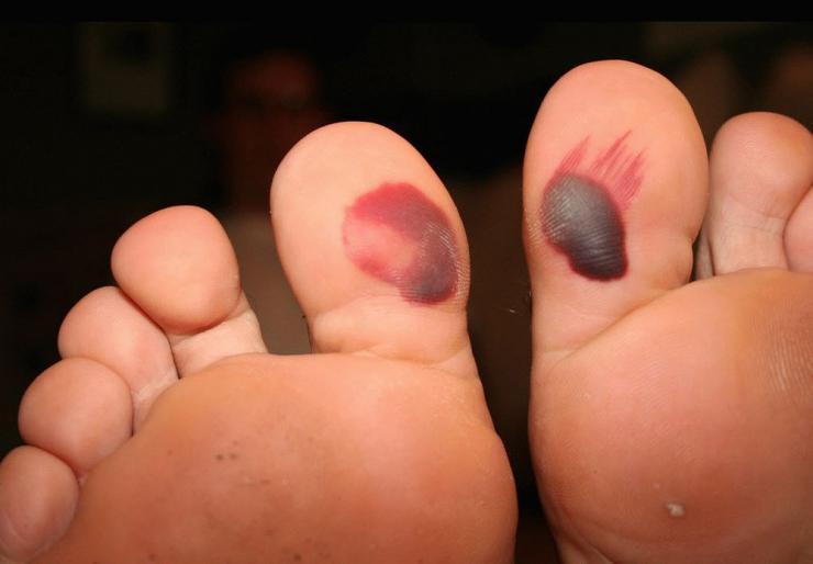 Лечение кровавых мозолей на ногах