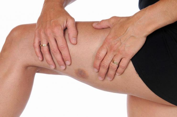 Как лечить гематому на ноге после ушиба?