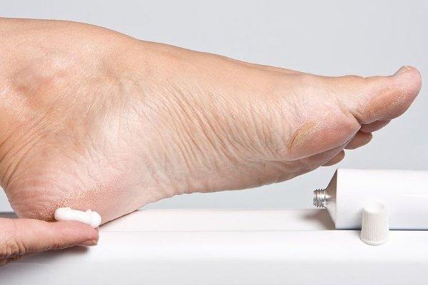 Мази и кремы для ног при сахарном диабете