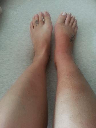 Признаки и лечение перелома ноги