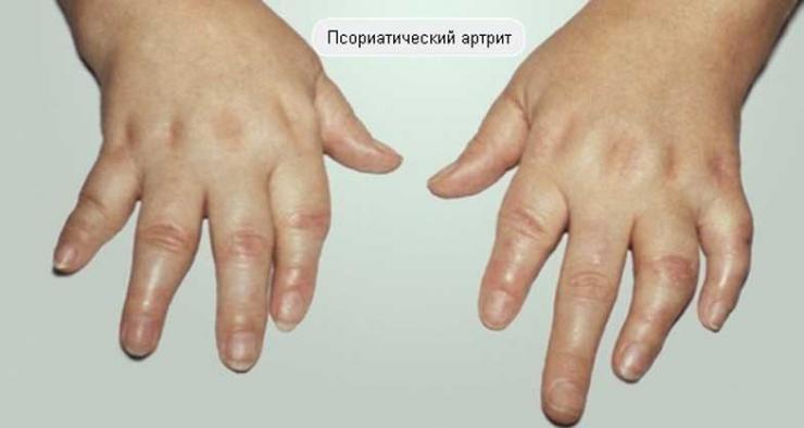 Особенности протекания псориатического артрита