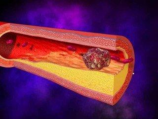 Как проверить сосуды нижних конечностей на наличие тромбов?
