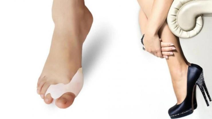 Область применения ортеза для пальца ноги