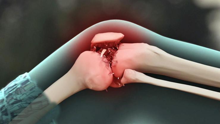 Чем лечить суставную боль?