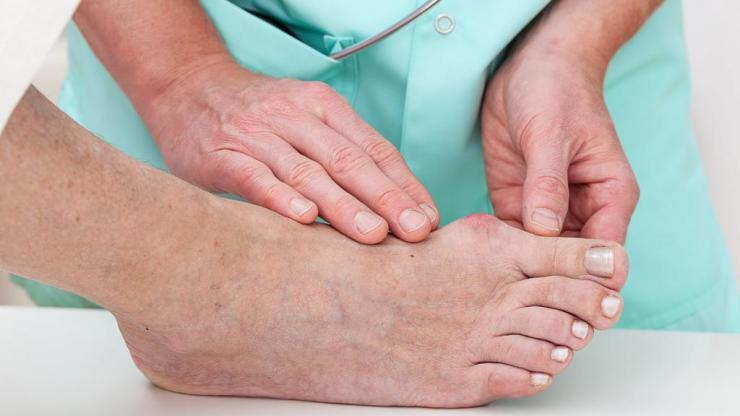 Можно ли прокалывать мозоль на ноге?