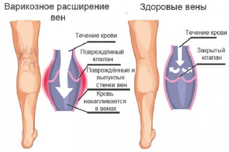 Действенные наружные средства от варикоза и тромбоза