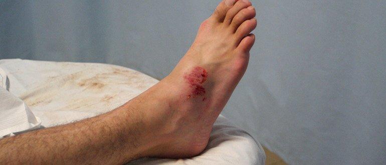 Как выглядит гематома на ноге
