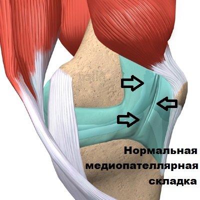 Медиопателлярная складка коленного сустава