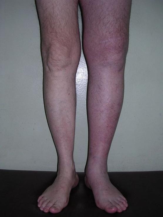 Как снять отек ноги после операции?