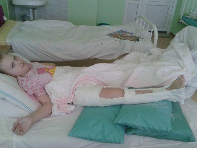 Перелом шейки бедра лечение детей thumbnail