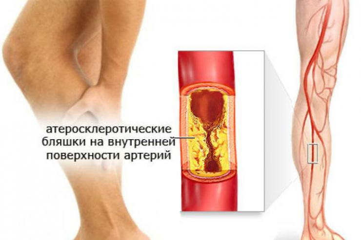Виды и лечение заболеваний сосудов ног